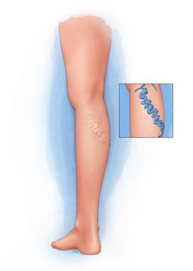 Bulging varicose veins